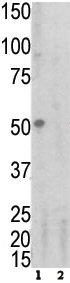 Western blot - TNF Receptor I antibody (ab60031)