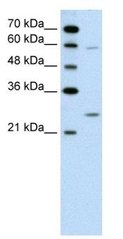 Western blot - GAMT antibody (ab60129)