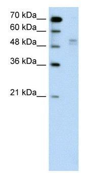 Western blot - Wwp2 antibody (ab60130)
