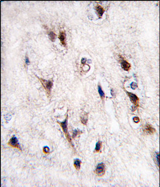 Immunohistochemistry (Formalin/PFA-fixed paraffin-embedded sections) - Nurr1 antibody (ab60149)
