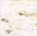 Immunohistochemistry (Formalin/PFA-fixed paraffin-embedded sections) - MARK1 antibody (ab60202)
