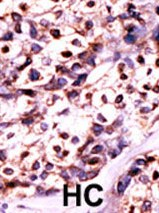 Immunohistochemistry (Formalin/PFA-fixed paraffin-embedded sections) - UCK2 antibody (ab60221)