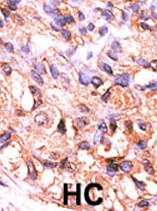Immunohistochemistry (Formalin/PFA-fixed paraffin-embedded sections) - PPM1F antibody (ab60234)