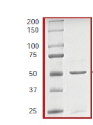 SDS-PAGE - ITK protein (ab60300)