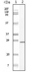 Western blot - c-Kit antibody [8D7B4, 8D7D4, 7H6B2,7H6B12L] (ab60585)