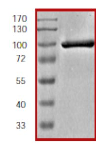 SDS-PAGE - ZAP70 protein (Tagged) (ab60963)