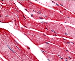 Immunohistochemistry (Formalin/PFA-fixed paraffin-embedded sections) - PYGM antibody (ab60982)