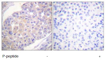 Immunohistochemistry (Formalin/PFA-fixed paraffin-embedded sections) - BCAR1 (phospho Y165) antibody (ab60989)