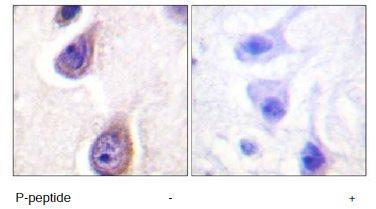 Immunohistochemistry (Formalin/PFA-fixed paraffin-embedded sections) - Phospholipase D1 (phospho S561) antibody (ab60993)