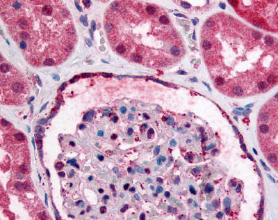 Immunohistochemistry (Formalin/PFA-fixed paraffin-embedded sections) - GPR89A antibody (ab60998)