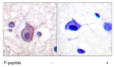 Immunohistochemistry (Formalin/PFA-fixed paraffin-embedded sections) - Anti-CD4 (phospho S433) antibody (ab61011)