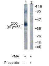 Western blot - CD5 (phospho Y453) antibody (ab61020)