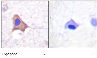 Immunohistochemistry (Formalin/PFA-fixed paraffin-embedded sections) - Transferrin Receptor (phospho S24) antibody (ab61021)