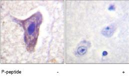 Immunohistochemistry (Formalin/PFA-fixed paraffin-embedded sections) - C5R1 (phospho S338) antibody (ab61022)