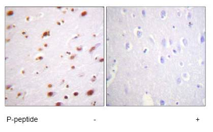 Immunohistochemistry (Formalin/PFA-fixed paraffin-embedded sections) - delta 1 Catenin (phospho Y228) antibody (ab61026)
