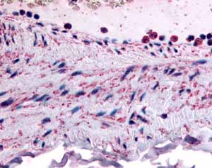 Immunohistochemistry (Formalin/PFA-fixed paraffin-embedded sections) - PTPMT1 antibody (ab61037)