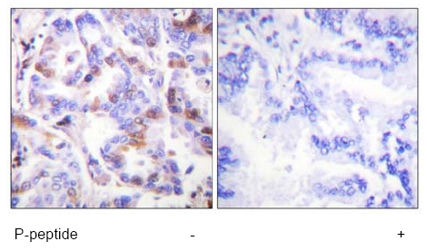 Immunohistochemistry (Formalin/PFA-fixed paraffin-embedded sections) - RPA32/RPA2 (phospho T21) antibody (ab61065)