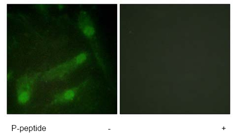 Immunocytochemistry/ Immunofluorescence - Smad2 (phospho T220) antibody (ab61066)