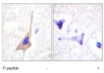 Immunohistochemistry (Formalin/PFA-fixed paraffin-embedded sections) - Tryptophan Hydroxylase (phospho S58) antibody (ab61068)