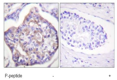 Immunohistochemistry (Formalin/PFA-fixed paraffin-embedded sections) - Vinculin (phospho Y821) antibody (ab61071)