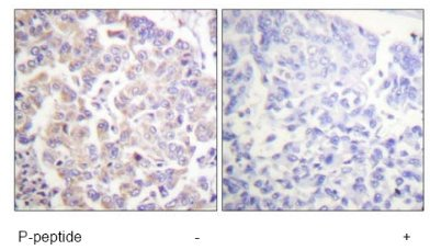 Immunohistochemistry (Formalin/PFA-fixed paraffin-embedded sections) - Apc1 (phospho S688) antibody (ab61072)
