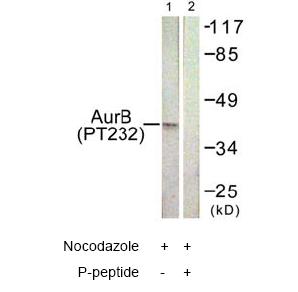 Western blot - Aurora B (phospho T232) antibody (ab61074)