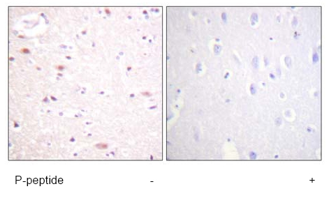 Immunohistochemistry (Formalin/PFA-fixed paraffin-embedded sections) - Apc6 (phospho S560) antibody (ab61075)