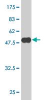 Western blot - Akirin2 antibody (ab61094)