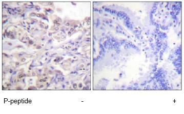 Immunohistochemistry (Formalin/PFA-fixed paraffin-embedded sections) - hnRNP D/AUF1 (phospho S83) antibody (ab61096)