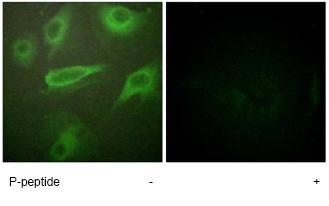 Immunocytochemistry/ Immunofluorescence - IL4R (phospho Y497) antibody (ab61099)