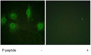 Immunocytochemistry/ Immunofluorescence - IL9R (phospho S519) antibody (ab61101)
