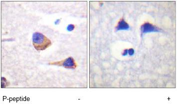 Immunohistochemistry (Formalin/PFA-fixed paraffin-embedded sections) - JAK3 (phospho Y785) antibody (ab61102)