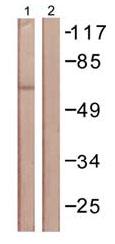 Western blot - Moesin (phospho T558) antibody (ab61109)