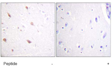 Immunohistochemistry (Formalin/PFA-fixed paraffin-embedded sections) - NIFK (phospho T234) antibody (ab61110)