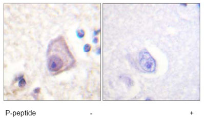 Immunohistochemistry (Formalin/PFA-fixed paraffin-embedded sections) - MEK4 (phospho S257) antibody (ab61112)