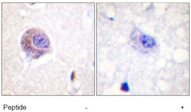 Immunohistochemistry (Formalin/PFA-fixed paraffin-embedded sections) - FAK antibody (ab61116)