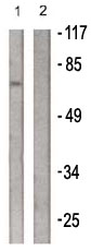 Western blot - PLK1 antibody (ab61118)