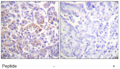 Immunohistochemistry (Formalin/PFA-fixed paraffin-embedded sections) - Raf1 antibody (ab61120)