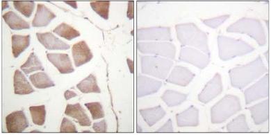 Immunohistochemistry (Formalin/PFA-fixed paraffin-embedded sections) - DAP Kinase 2 antibody (ab61142)