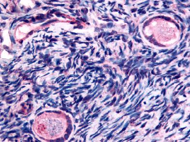 Immunohistochemistry (Formalin/PFA-fixed paraffin-embedded sections) - TMEM5 antibody (ab61145)