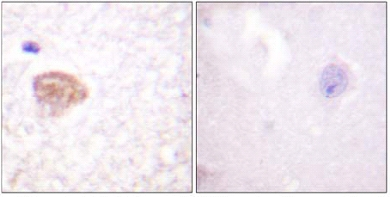 Immunohistochemistry (Formalin/PFA-fixed paraffin-embedded sections) - DDX3 antibody (ab61153)
