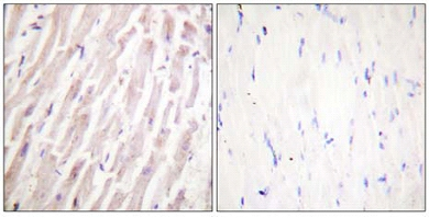 Immunohistochemistry (Formalin/PFA-fixed paraffin-embedded sections) - Dematin antibody (ab61155)