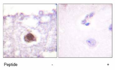 Immunohistochemistry (Formalin/PFA-fixed paraffin-embedded sections) - DNA PKcs antibody (ab61159)