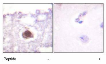 Immunohistochemistry (Formalin/PFA-fixed paraffin-embedded sections) - DNA PKcs antibody (ab61159)