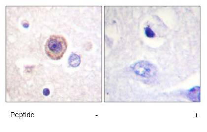 Immunohistochemistry (Formalin/PFA-fixed paraffin-embedded sections) - Tryptophan Hydroxylase antibody (ab61185)