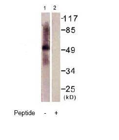 Western blot - Tryptophan Hydroxylase antibody (ab61185)