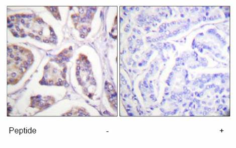 Immunohistochemistry (Formalin/PFA-fixed paraffin-embedded sections) - Vinculin antibody (ab61186)