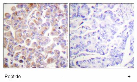 Immunohistochemistry (Formalin/PFA-fixed paraffin-embedded sections) - Apc1 antibody (ab61187)