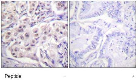 Immunohistochemistry (Formalin/PFA-fixed paraffin-embedded sections) - hnRNP D/AUF1 antibody (ab61193)