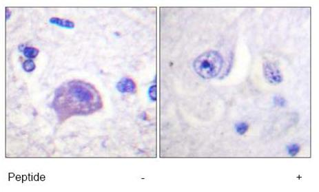 Immunohistochemistry (Formalin/PFA-fixed paraffin-embedded sections) - HGS antibody (ab61194)